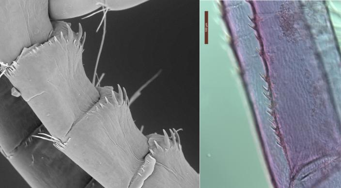 Scanning electron (left) and light (right) microscope images of the teeth and sp