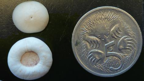 Two white calcified discs near a 5 cent piece